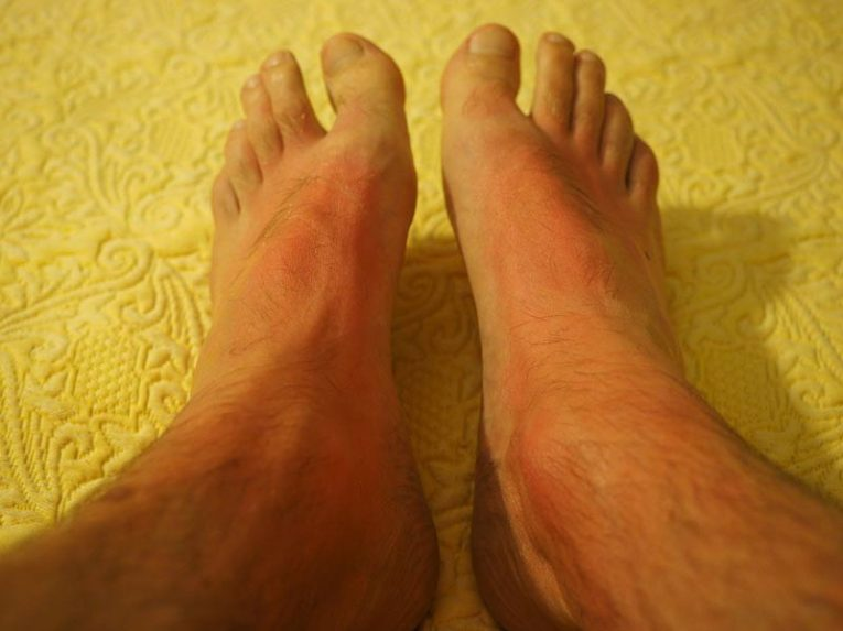 operațiunea varicleoza pe picioare la bărbați)